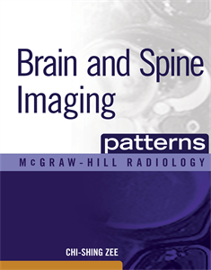 Picture of Brain and Spine Imaging
