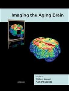 Picture of Imaging the Aging Brain