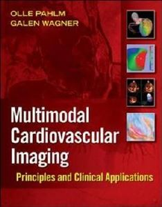Picture of Multimodal Cardiovascular Imaging