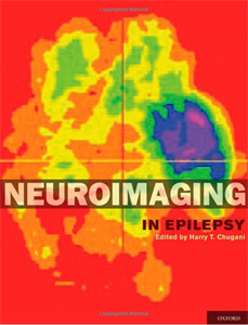 Picture of Neuroimaging in Epilepsy