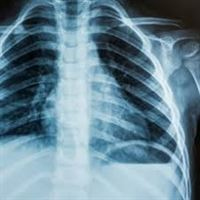 Picture for category Click here for RADIOGRAPHY - RAD