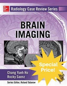 Picture of Brain Imaging